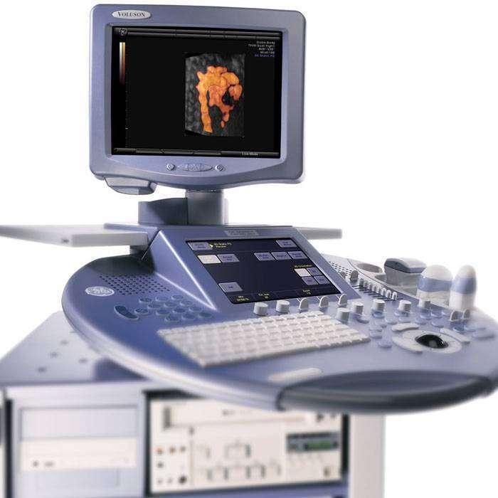 Doppler Ultrason Nedir?