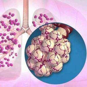 Alveol Nedir?