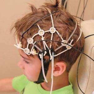 Elektroensefalogram(EEG) Nedir?