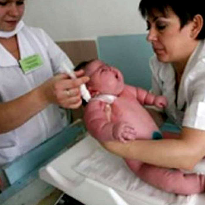 Dünyanın En Kilolu Bebeği Doktorları Bile Şaşkına Çevirdi!